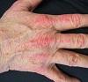 40 Jenis Penyakit Kulit berserta Gambarnya