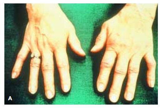 Rheumatoid arthritis. (A) Early
