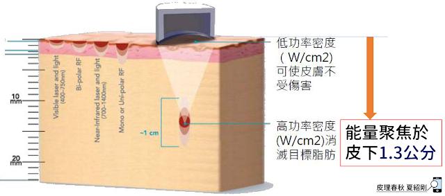 超音波能量聚焦於皮下1.3公分處(原圖引用自官網)-皮理春秋