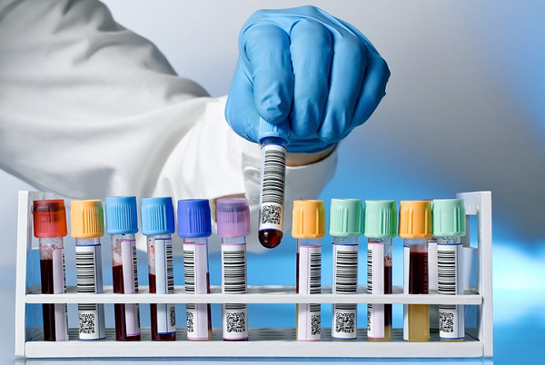Types of laboratory tests requiring fasting before verification