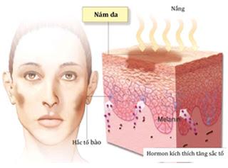 Cách trị nám da mặt bằng tinh bột nghệ