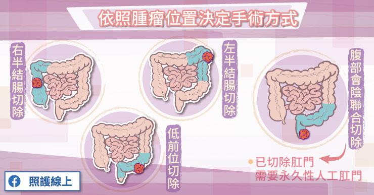 大腸直腸癌手術治療主要是依照腫瘤位置來決定手術方式