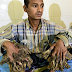 HEALTH: Bangladeshi Man Has Tree-Like Growths Removed From His Hand!