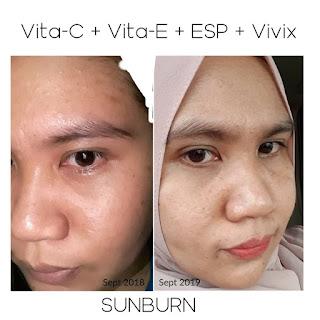Sustained release vita c plus, vita e complex, esp mixed soy protein, vivix, set kulit cantik, antioksida, anti virus, anti kanser, anti radang, awet muda, rawat kulit sunburn, Shaklee, Qiya Saad,