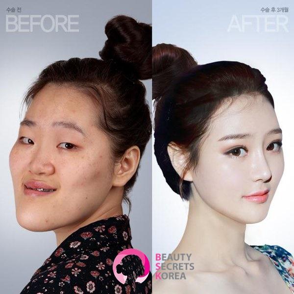 รีวิวศัลยกรรมเกาหลี เอเจนซี่BSK : รีวิวก่อนหลังศัลยกรรม ขากรรไกร โครงหน้า จมูก ตา ฉีดไขมัน ฉีดโบท็อก