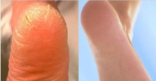 Voici comment préparer le meilleur remède maison pour soigner les crevasses aux talons et la peau sèche !
