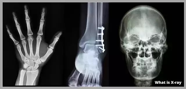 What is X-ray