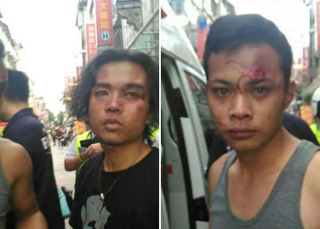 Salah Sasaran, TKI Ini Kena Hajar Sepulang Dari Pengajian di Taichung Hingga Babak Belur