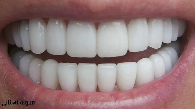 تبييض الأسنان الحقيقة الصريحة.