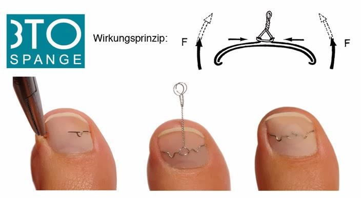 Totul despre manichiura: Avantajele tratamentului 3TO Spange