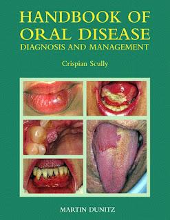 Handbook of Oral Disease