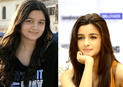 Alia Bhatt Transformation Pictures
