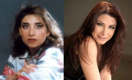 The Plastic Arab Singers Before And After Picture, Surgeries Maybe
