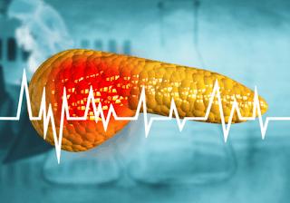 الفرق بين التهاب البنكرياس وسرطان البنكرياس
