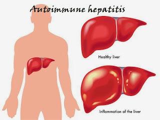 boli hepatice autoimune