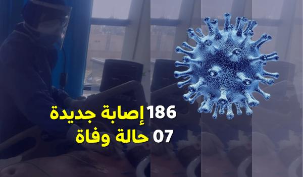 تسجيل 186 إصابة جديدة و 7 وفيات خلال 24 ساعة الأخيرة