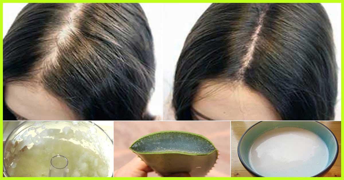 Cómo tratar las costras del cuero cabelludo