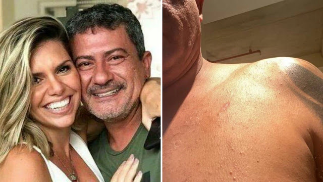 Fotos e áudio! Tom Veiga narra agressão que sofreu da mulher  -  Adamantina Notìcias