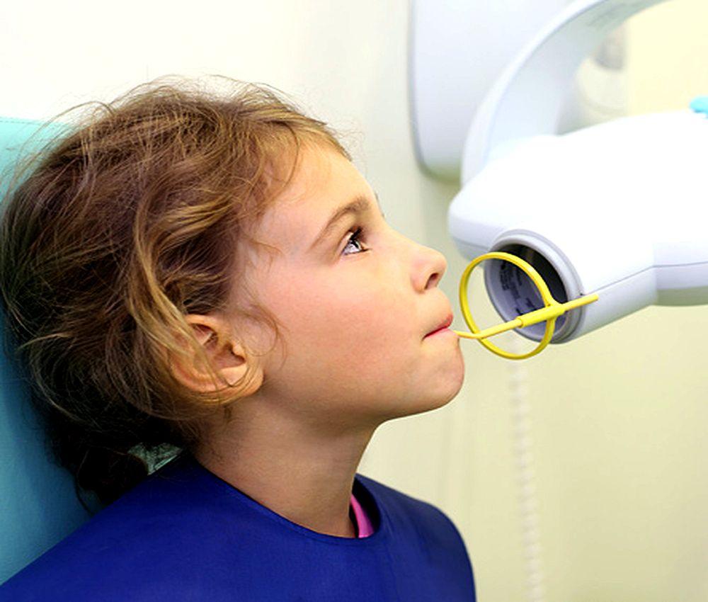 radiologia-odontopediatria