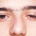 These Types of Eye Pain Must Be Cautious