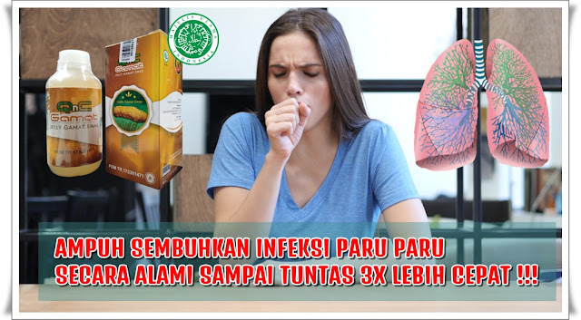 Obat Infeksi Paru Paru Ampuh 100% Aman & Efektif (Tidak ...