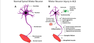 Amyotrophic lateral sclerosis (ALS) is a neurodegenerative disease of motor neurons