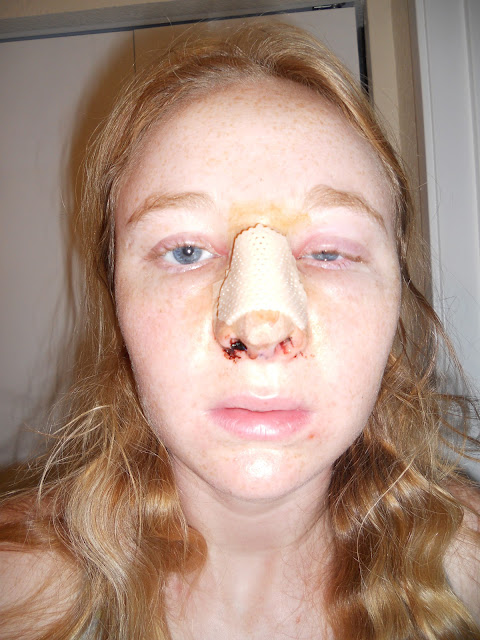 My Septoplasty And Me September 2012