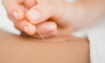 Risiko dan Efek Samping Akupuntur Untuk Kesehatan