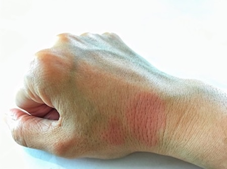 Lupus: Successful treatment using natural remedies.