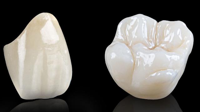 FAQ dental crown