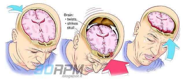 Raffigurazione di un impatto con concussione cerebrale