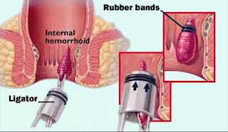 resep obat benjolan di lubang dubur sebesar bola pimpong tanpa operasi