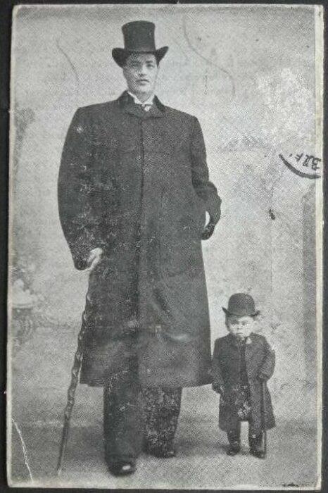 Adam Rainer el hombre que era enano y gigante a la vez