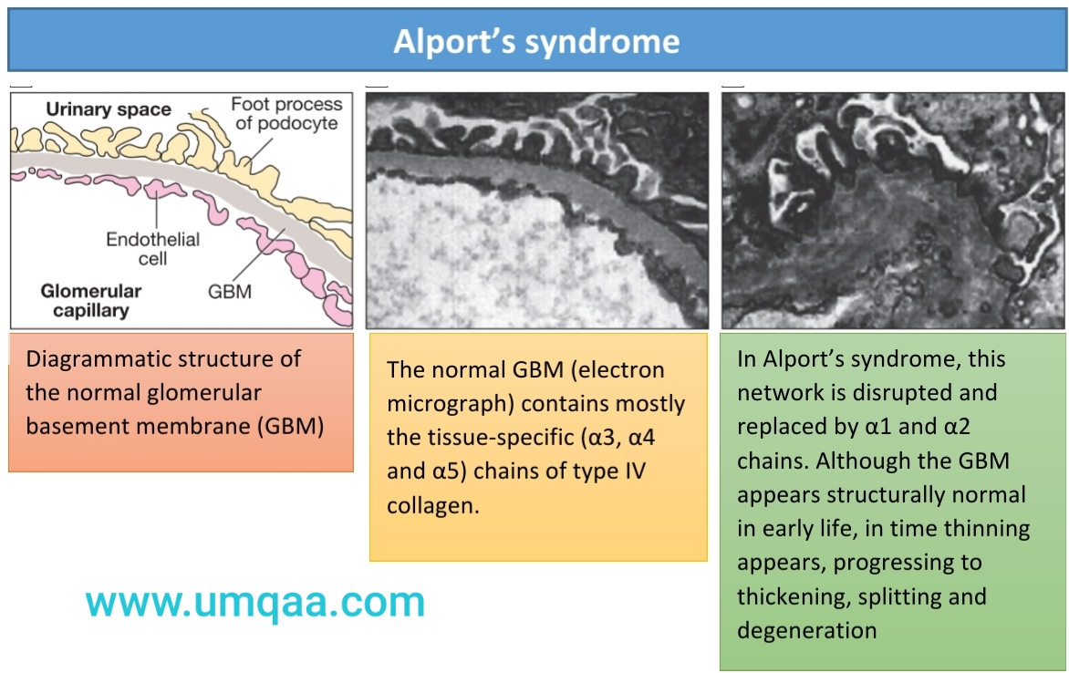 Alport's syndrome