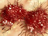 Makanan Yang Sering Anda Makan Ini Ternyata Boleh Sebabkan 4 Jenis Kanser