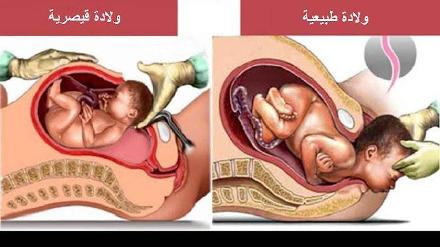الفرق بين الولادة الطبيعية والقيصرية