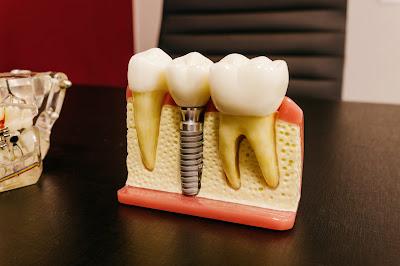 A surpreendente verdade que nunca contaram a você sobre implantes