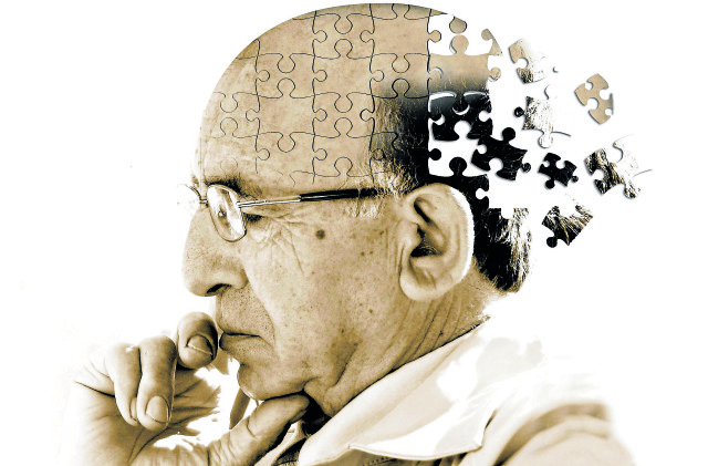 Un altro tassello nello studio dell'Alzheimer