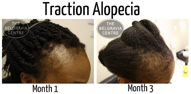 Traction Alopecia How To Regrow Your Hair The Belgravia