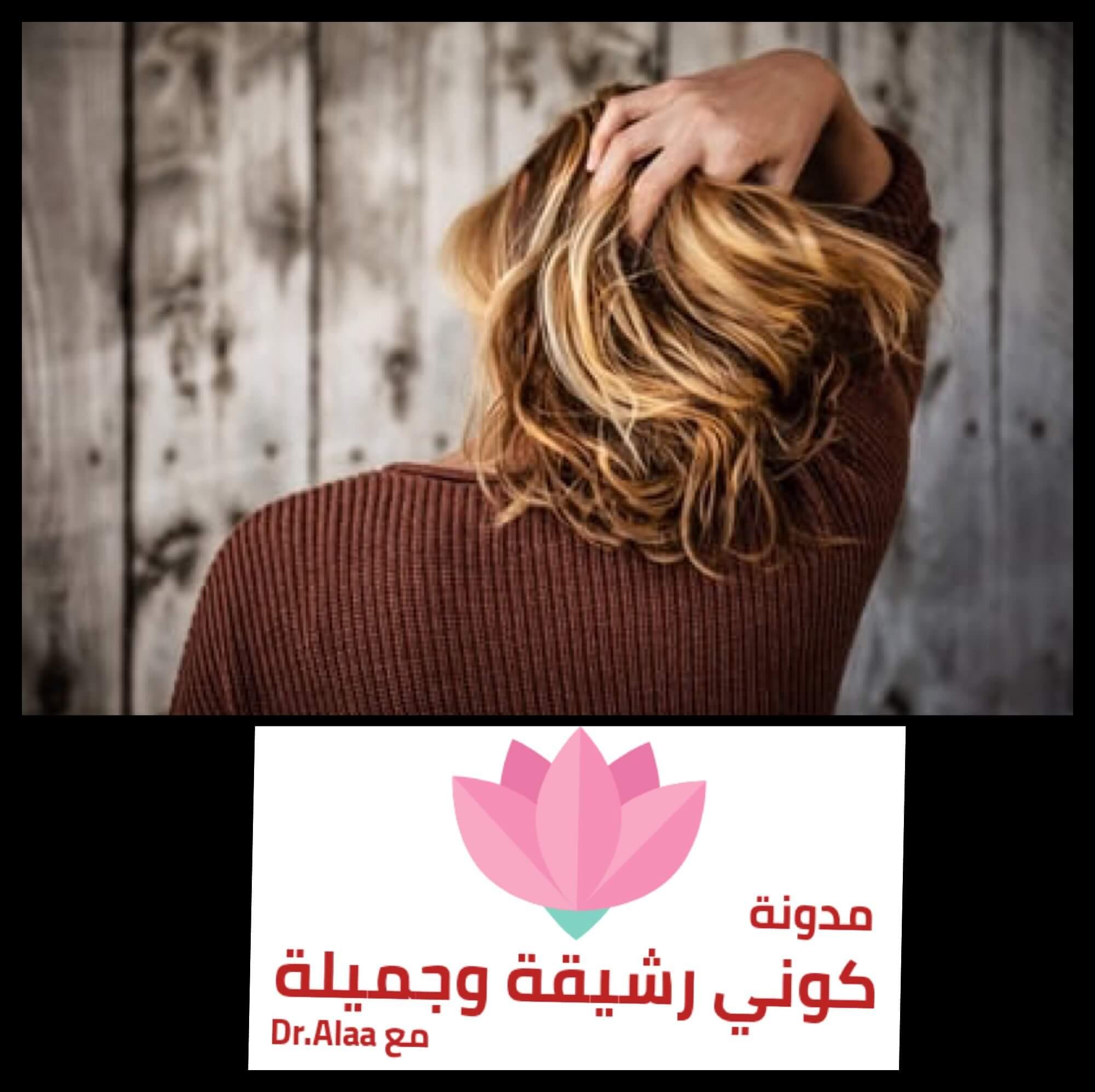 زراعة الشعر للنساء وما نتائجها