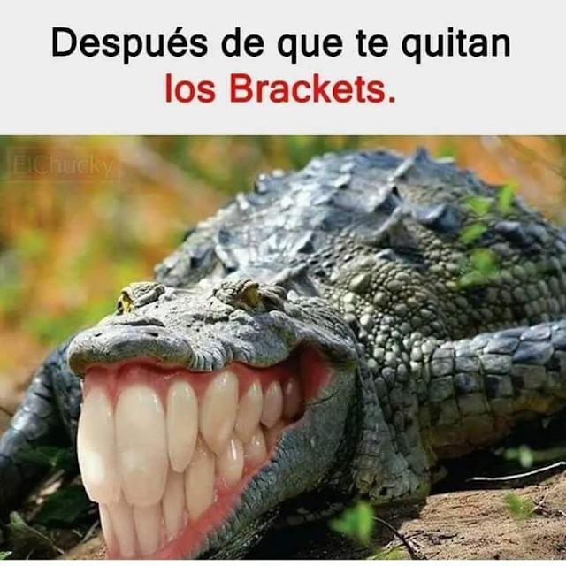 humor brackets, humor dentistas humor ortodoncias
