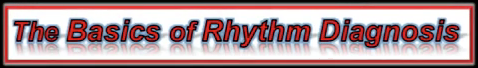 Arrhythmia Diagnosis Videos!