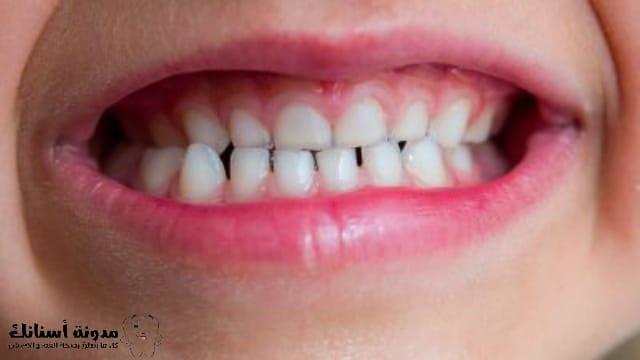 8 طرق طبيعية لتبييض الأسنان في المنزل.