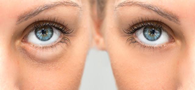 Tak Ada Lagi Kantung Mata: 4 Cara Mengatasinya Secara Sederhana