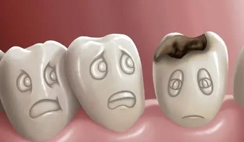 الوقاية من حدوث تسوس الأسنان عند الأطفال