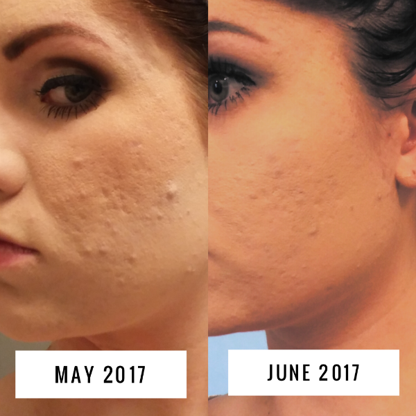 Woman shows how to remove pimples from face in before and after picture