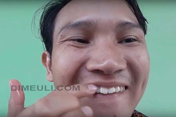 Cara Mempercantik Gigi Dengan Membersihkan dan Merapihkan Gigi