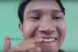 Cara Mempercantik Gigi Dengan Memutihkan dan Merapihkan Gigi