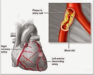 penyakit jantung koroner, obat herbal jantung koroner terampuh