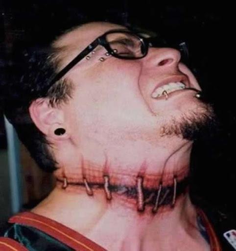 Cabeça costurada sobre tatuagem
